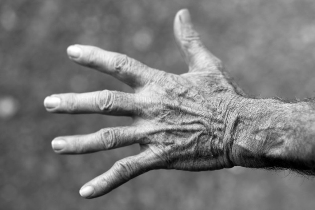 alte faltige Hand